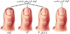 نتیجه تصویری برای کوتاه کردن ناخن های پا