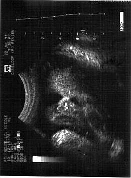 Pregnancy Ultrasound Picture : week 35